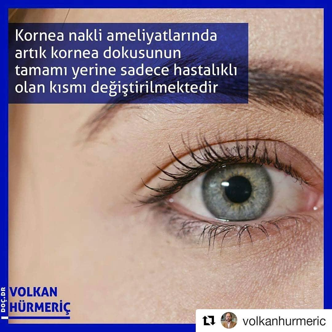 #Repost @volkanhurmeric (@get_repost) ・・・ Bazı hastalıklardan dolayı saydamlığını kaybeden kornea dokusunun değiştirilmesi için kornea nakli ameliyatları uzun yıllardır yapılmaktadır. Ancak günümüzdeki kornea ameliyatlarında korneanın tamamını değil, sadece hastalıklı olan kısmını değiştiriyoruz. Bu sayede vücudun korneayı reddetme ve göz tansiyonu ihtimalini aza indiriyoruz. #DrVolkanHurmeric #dünyagöz #dünyagözankara #gözdoktoru #katarakt #lazertedavisi #lasik #keratokonus #toriklens #keratoplasti #kornea #korneanakli