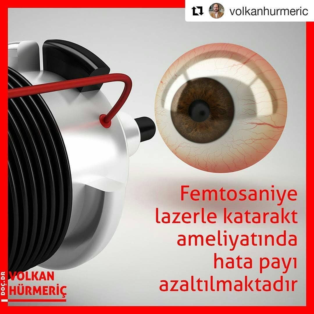 #Repost @volkanhurmeric (@get_repost) ・・・ Bilgisayar teknolojisinden faydalanarak uyguladığımız femtosaniye lazerle katarakt ameliyatlarının süresini kısaltmanın yanı sıra komplikasyon oranını aza indirebiliyoruz. Hastalarımızın görüşü de yine bu teknolojiyle daha hızlı bir şekilde düzelebiliyor. #DrVolkanHurmeric #dünyagöz #dünyagözankara #gözdoktoru #katarakt #lazertedavisi #lasik #femtosaniyelazer #keratokonus #toriklens #keratoplasti #kornea #korneanakli